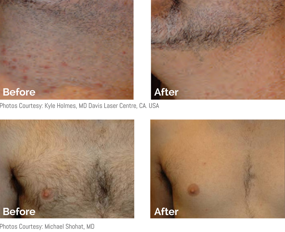 Hair removal for men on beard and chest