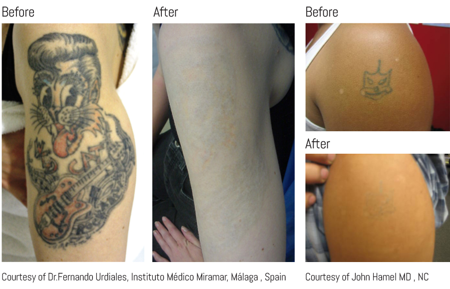before and after tattoos