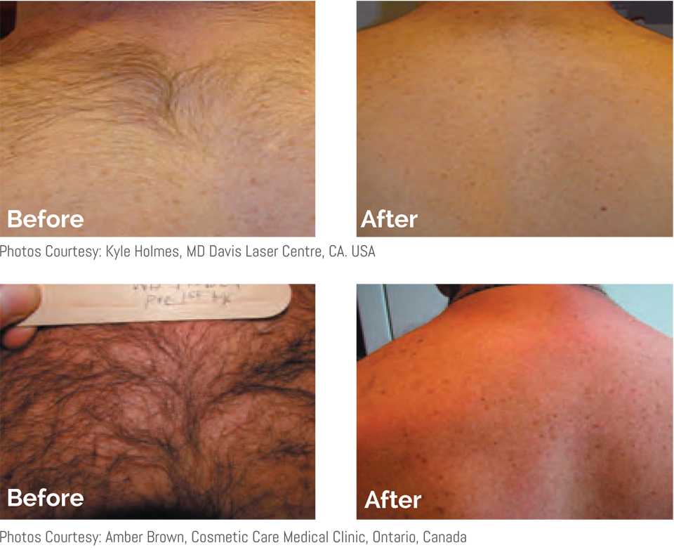 back/shoulders before and after laser treatment