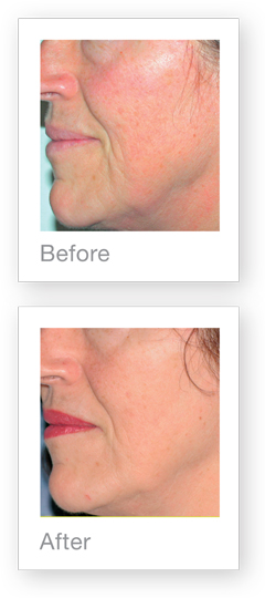 before and after skin rejuvenation