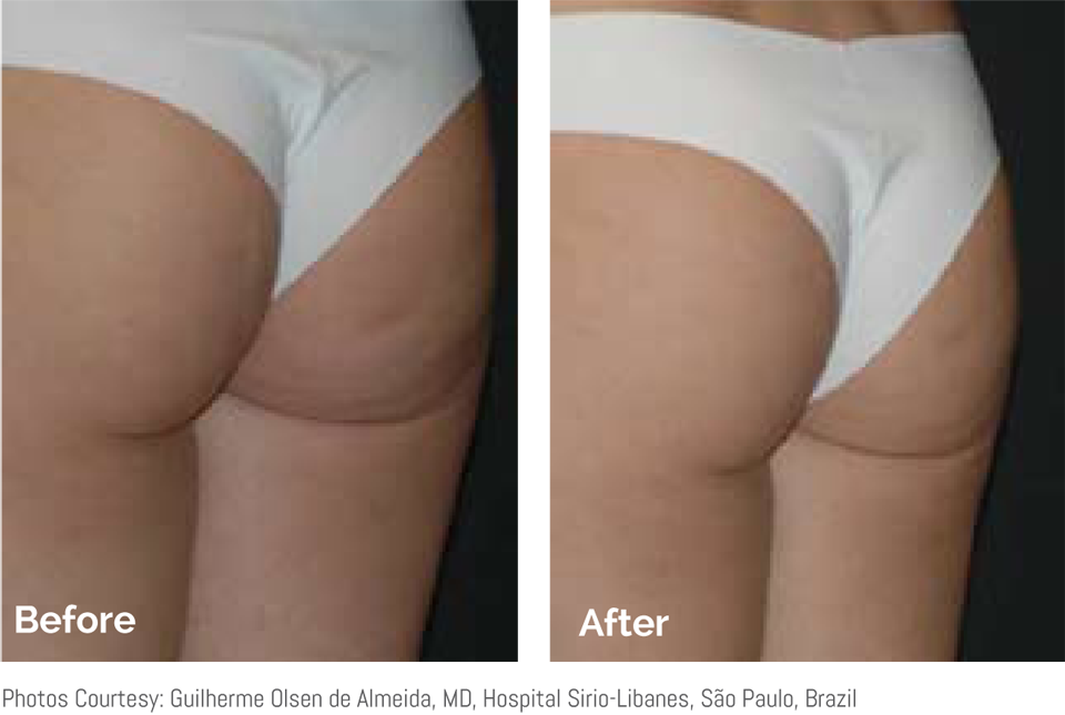 before and after skin tightening on bottom
